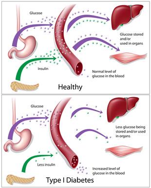 Diabetes und Abnehmen